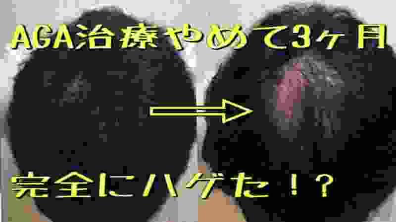 AGA治療休止日記VOL.7【3ヶ月で完全なハゲに!?】