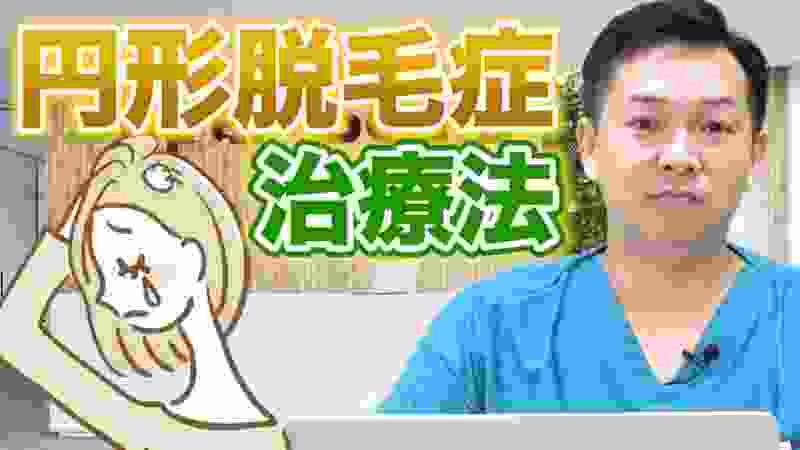 【10円ハゲ】円形脱毛症はクセになる!! 改善方法は〇〇光線!! | スーパースカルプチャンネルvol.029